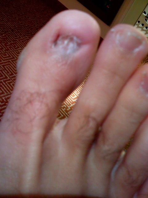 Wakeboarder :: Gross toe question